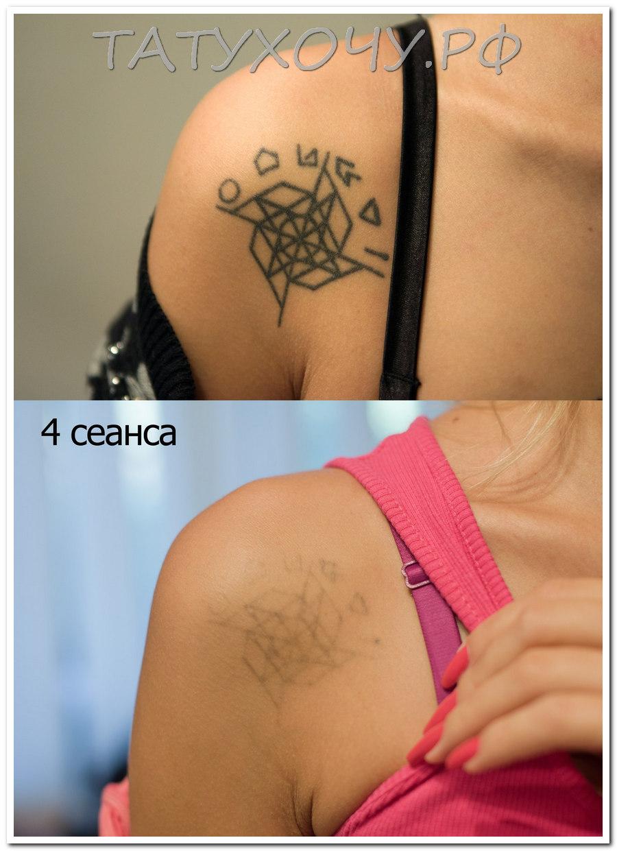 Удаление татуировок ремувером фото