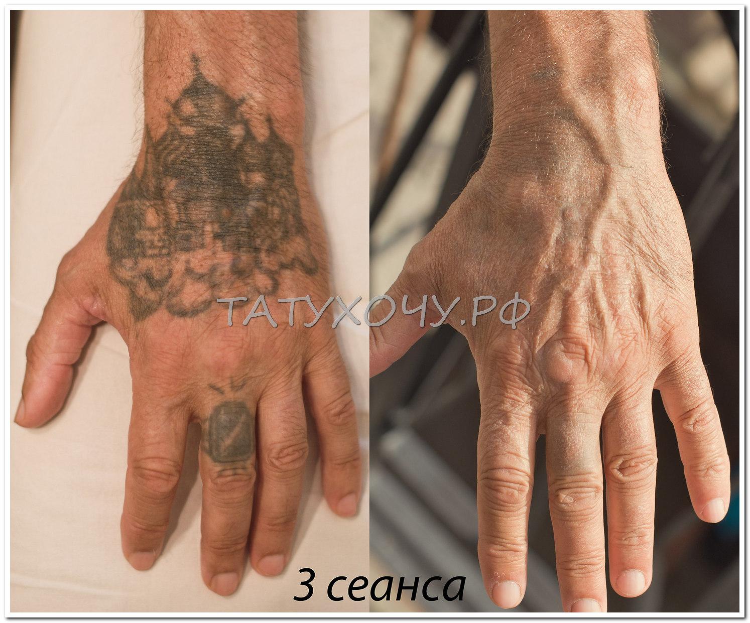 Выведение татуировок йодом фото